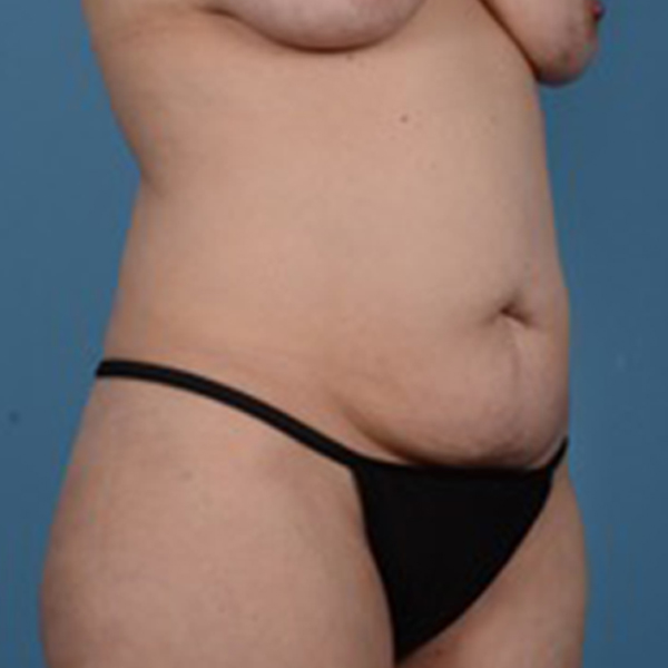 Tummy Tuck Gallery - Patient 46966995 - Image 3