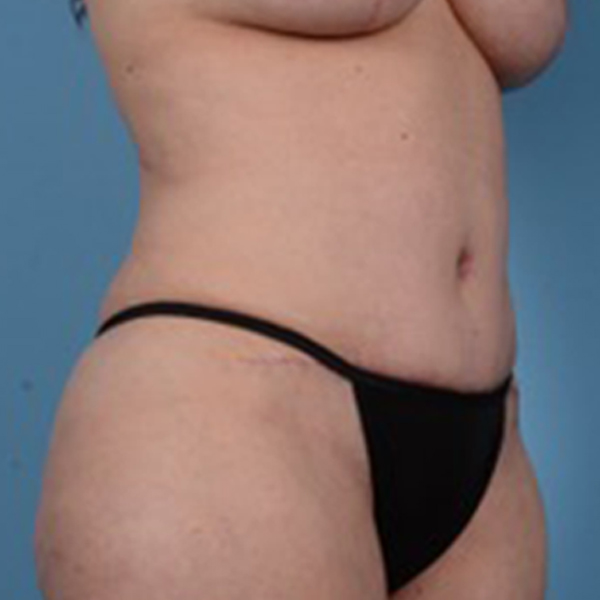 Tummy Tuck Gallery - Patient 46966995 - Image 4