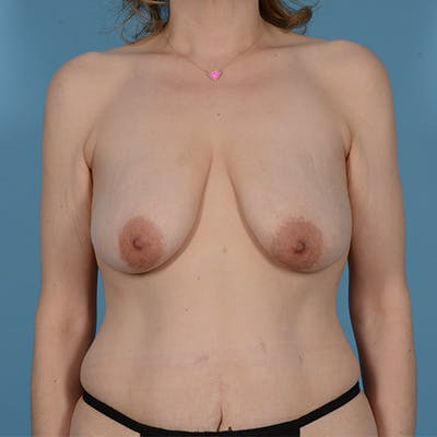 Panniculectomy Gallery - Patient 49970614 - Image 2