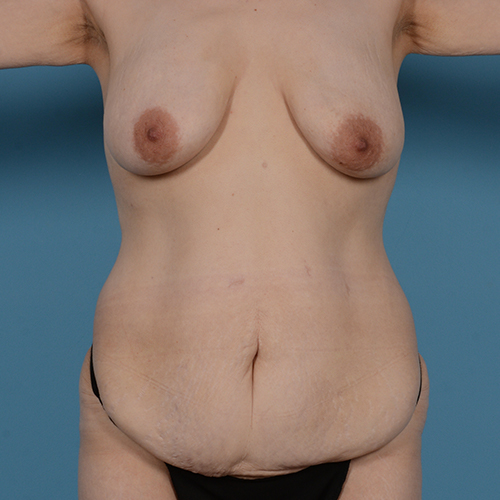 Panniculectomy Gallery - Patient 49970614 - Image 1