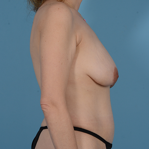 Panniculectomy Gallery - Patient 49970614 - Image 4