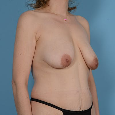 Panniculectomy Gallery - Patient 49970614 - Image 6