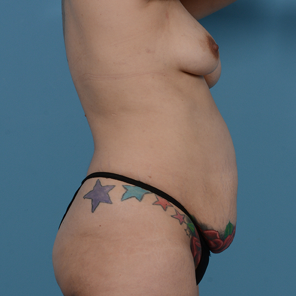 Tummy Tuck Gallery - Patient 53256293 - Image 3