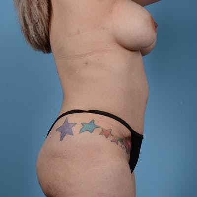 Tummy Tuck Gallery - Patient 53256293 - Image 4