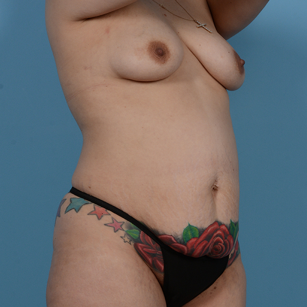 Tummy Tuck Gallery - Patient 53256293 - Image 5