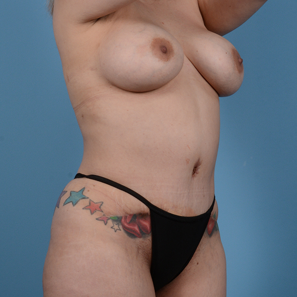 Tummy Tuck Gallery - Patient 53256293 - Image 6