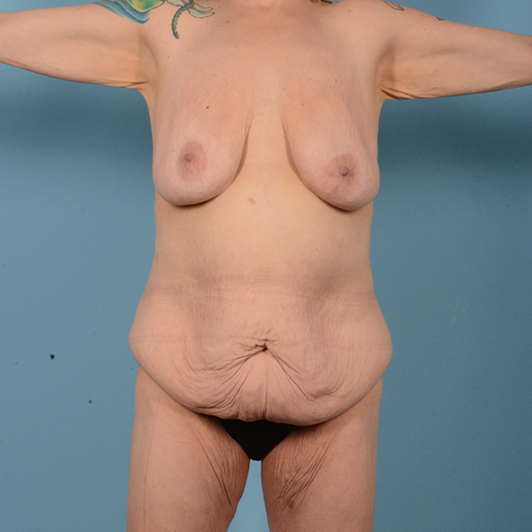 Mommy Makeover Gallery - Patient 52517600 - Image 1