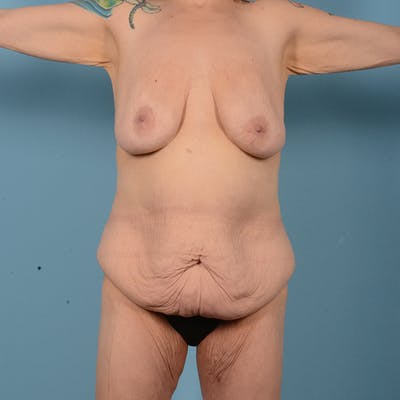 Tummy Tuck Gallery - Patient 52517595 - Image 1