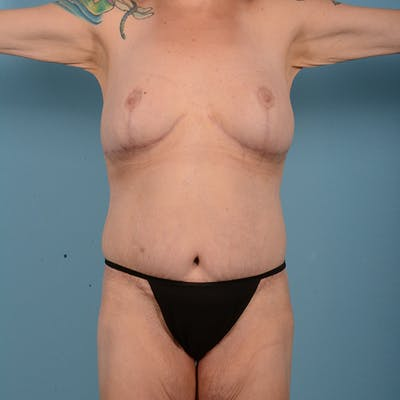Mommy Makeover Gallery - Patient 52517600 - Image 2