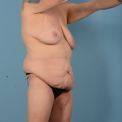 Mommy Makeover Gallery - Patient 52517600 - Image 3