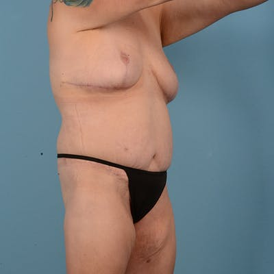 Mommy Makeover Gallery - Patient 52517600 - Image 4