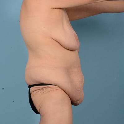 Mommy Makeover Gallery - Patient 52517600 - Image 5