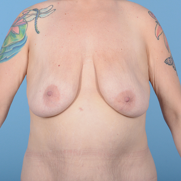 Breast Lift Gallery - Patient 52517603 - Image 1