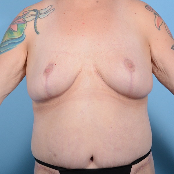 Breast Lift Gallery - Patient 52517603 - Image 2