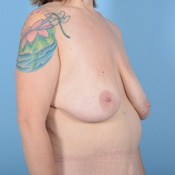 Breast Lift Gallery - Patient 52517603 - Image 3