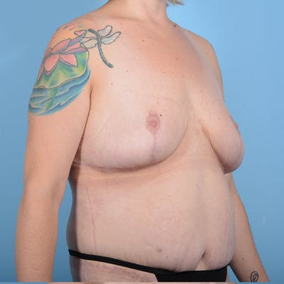 Breast Lift Gallery - Patient 52517603 - Image 4
