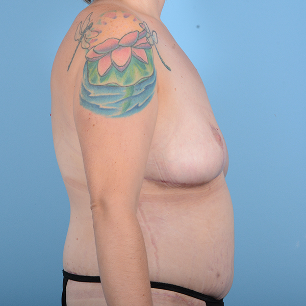 Breast Lift Gallery - Patient 52517603 - Image 6
