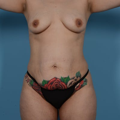 Tummy Tuck Gallery - Patient 53256293 - Image 1