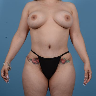 Tummy Tuck Gallery - Patient 53256293 - Image 2