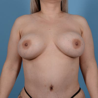 Breast Augmentation Gallery - Patient 53256349 - Image 2