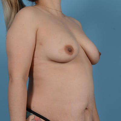 Breast Augmentation Gallery - Patient 53256349 - Image 3