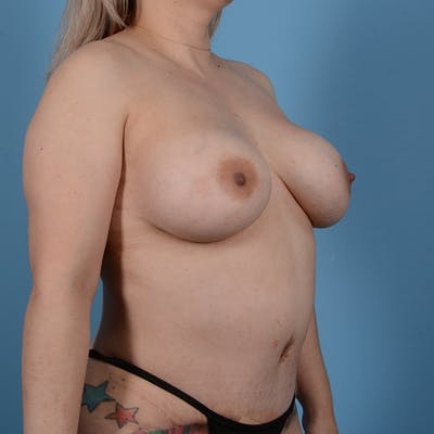 Breast Augmentation Gallery - Patient 53256349 - Image 4