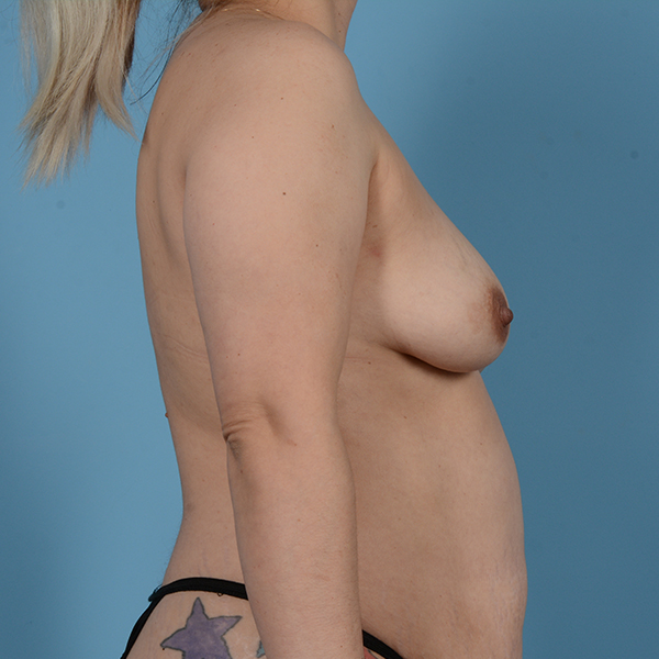 Breast Augmentation Gallery - Patient 53256349 - Image 5