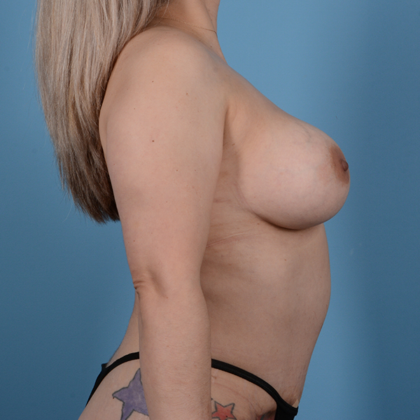 Breast Augmentation Gallery - Patient 53256349 - Image 6