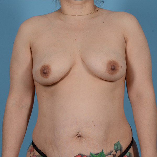 Breast Augmentation Gallery - Patient 53256349 - Image 1