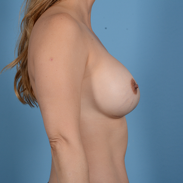 Breast Revision Gallery - Patient 53263636 - Image 4