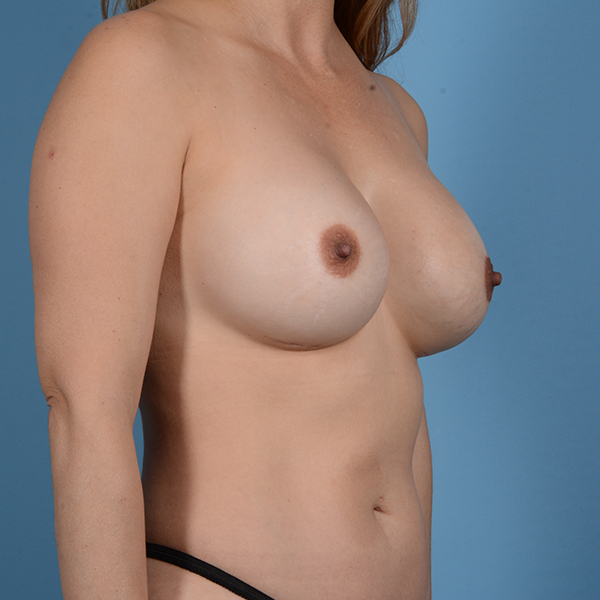 Breast Revision Gallery - Patient 53263636 - Image 6