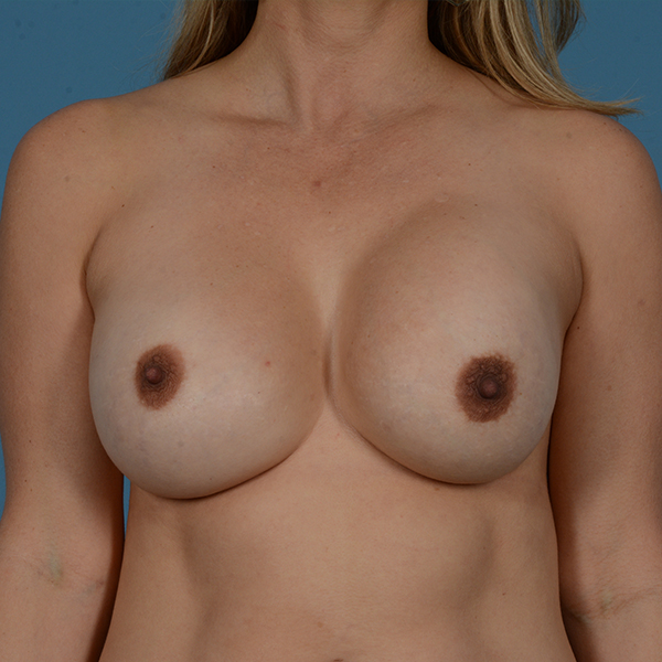 Breast Revision Gallery - Patient 53263636 - Image 1