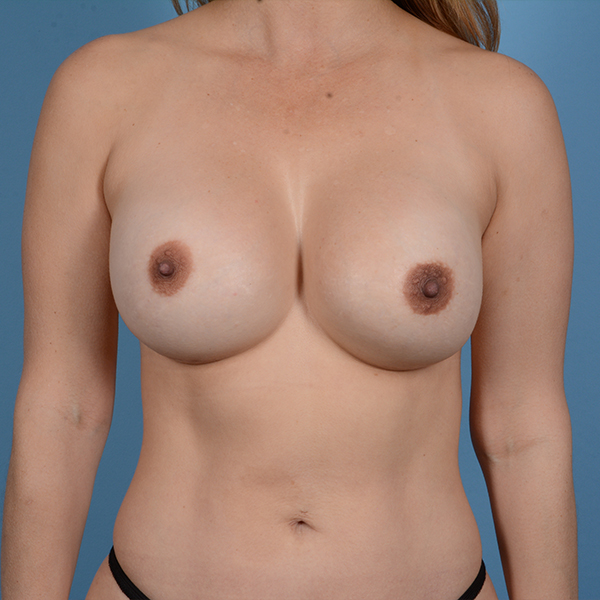 Breast Revision Gallery - Patient 53263636 - Image 2