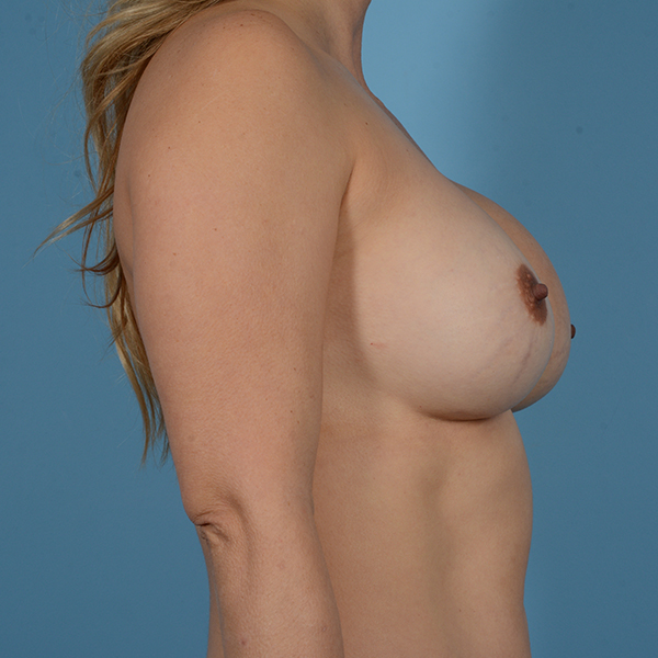 Breast Revision Gallery - Patient 53263636 - Image 3