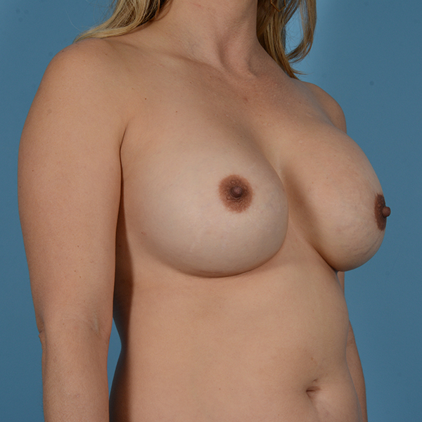 Breast Revision Gallery - Patient 53263636 - Image 5