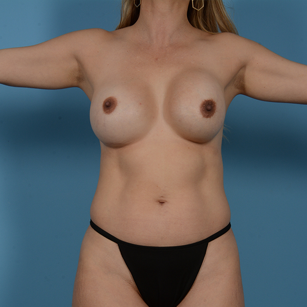 Liposuction Gallery - Patient 53263643 - Image 1