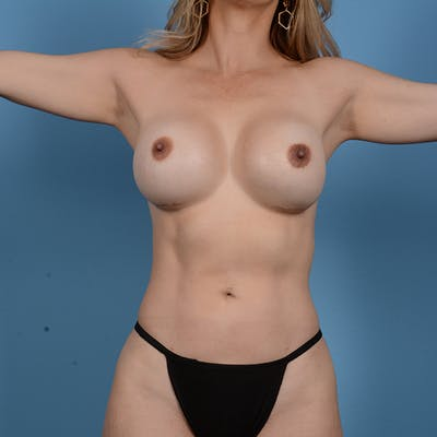 Liposuction Gallery - Patient 53263643 - Image 2