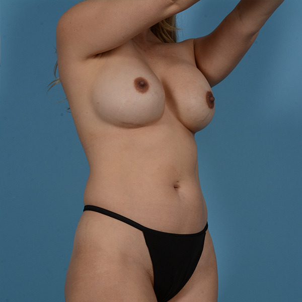 Liposuction Gallery - Patient 53263643 - Image 3