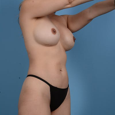 Liposuction Gallery - Patient 53263643 - Image 4