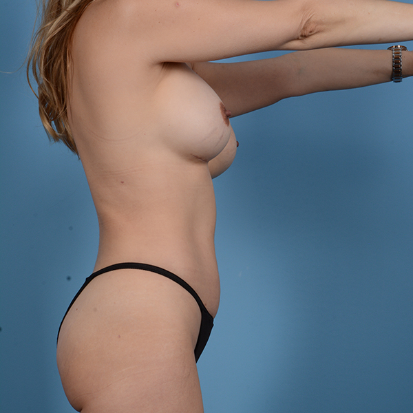 Liposuction Gallery - Patient 53263643 - Image 6