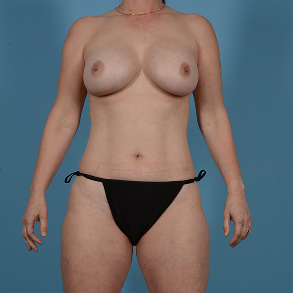 Liposuction Gallery - Patient 53263665 - Image 1
