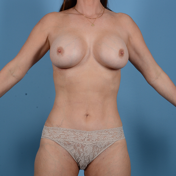 Liposuction Gallery - Patient 53263665 - Image 2