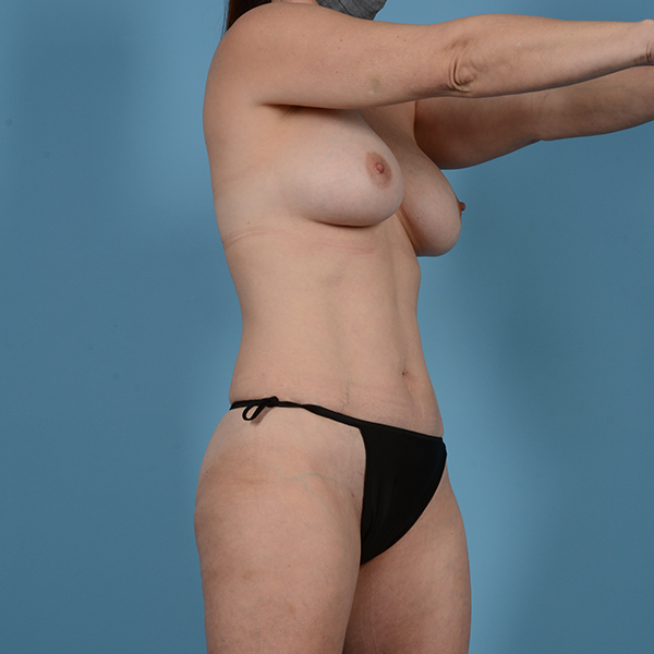 Liposuction Gallery - Patient 53263665 - Image 3
