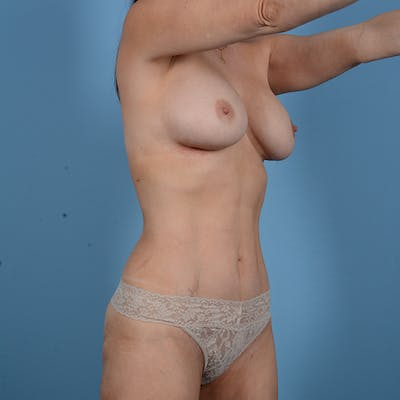 Liposuction Gallery - Patient 53263665 - Image 4