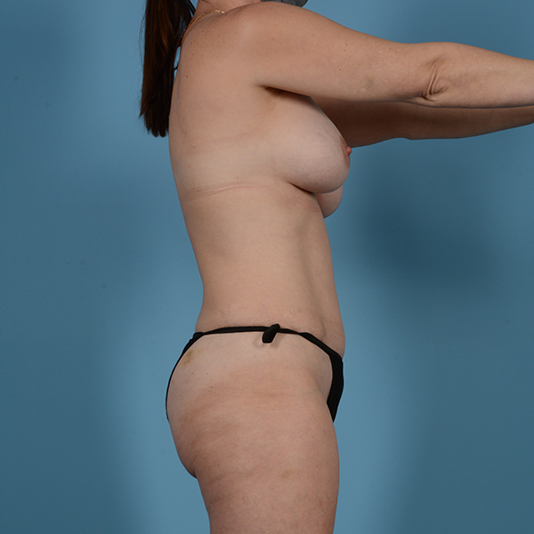 Liposuction Gallery - Patient 53263665 - Image 5