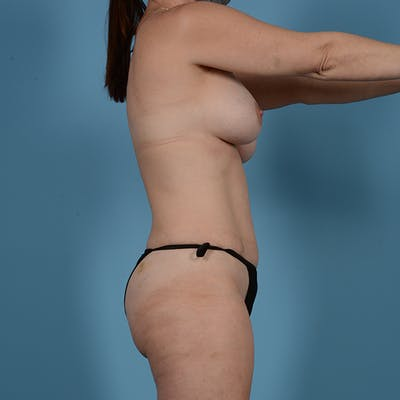 Mommy Makeover Gallery - Patient 53263666 - Image 5