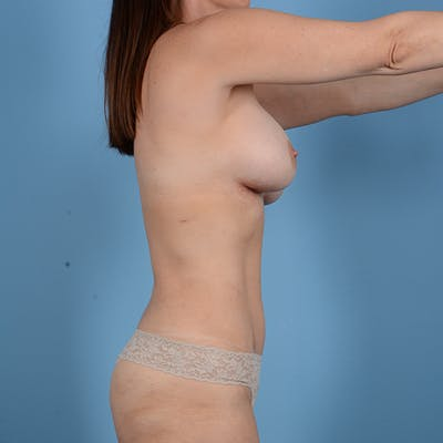 Liposuction Gallery - Patient 53263665 - Image 6