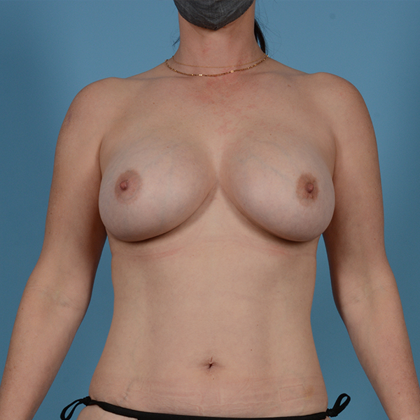 Breast Revision Gallery - Patient 53263667 - Image 1