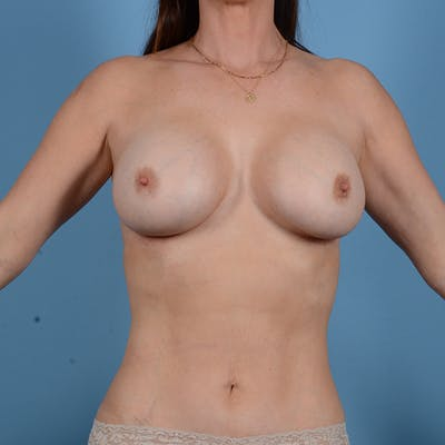 Breast Revision Gallery - Patient 53263667 - Image 2