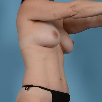 Breast Revision Gallery - Patient 53263667 - Image 3